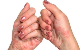 Псориатический артрит — причины, симптомы, лечение, профилактика