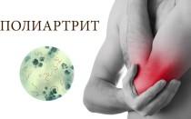 Полиартрит — виды, симптомы, диагностика, лечение, профилактика