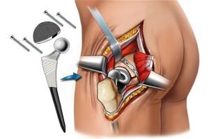 Как вылечить артроз — оперативное и медикаментозное лечение, мануальная терапия, народные средства