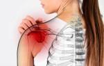 Плечелопаточный периартрит — причины, симптомы, лечение, профилактика, прогноз
