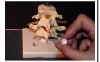 Уколы от остеохондроза — их виды, преимущества и недостатки, особенности лечения