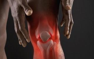Реактивный артрит — причины, разновидности, диагностика, лечение и профилактика