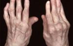 Признаки артрита в зависимости от стадий, причины и факторы развития болезни