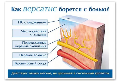 пластырь версатис инструкция